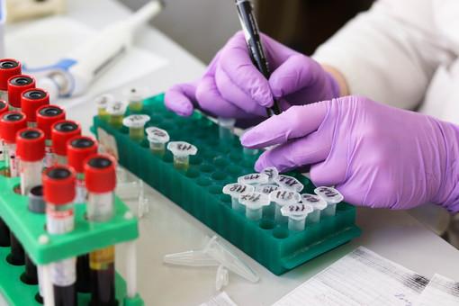 Emergenza coronavirus, si potenzia la macchina di sostegno alle RSA piemontesi