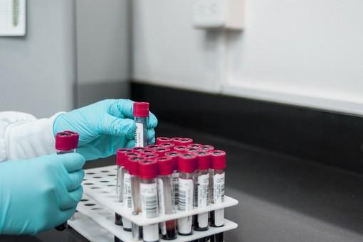Coronavirus, il Piemonte ha la più alta percentuale di persone tracciate con il test virologico